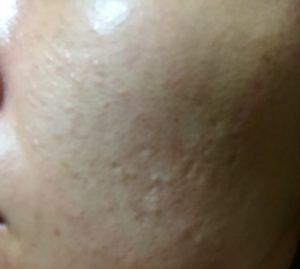 SK2の無料肌診断とサンプル